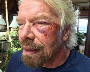 Reloaded twaddle – RT @richardbranson: If you fall flat on your face, at least you're moving forwar...